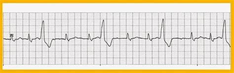 What is the purpose of ventricular couplets? - Quora